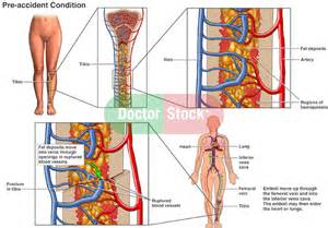 effects of bone fracture on circulation picture 11