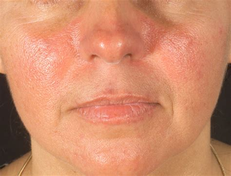 alergic skin reactions to the sun picture 3