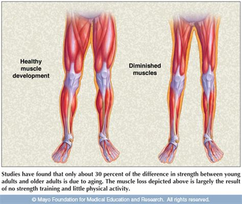 aging muscle lose picture 7