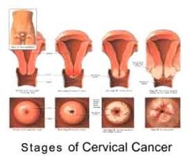 cancer of the body of the uterus during picture 10