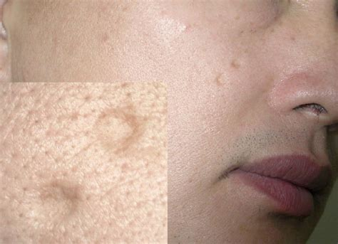 Acne scarring treatment picture 9