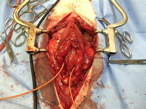 bladder procedures picture 18