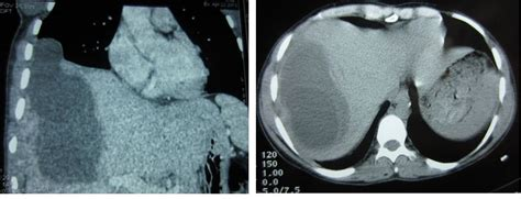large liver cyst complications picture 9