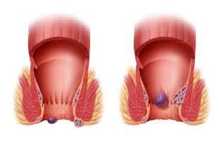 hemorrhoid treatment 2013 picture 5