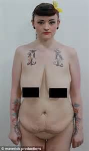 saggy breasts before and after picture 1