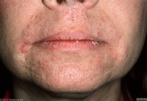 herpes of the mouth picture 2