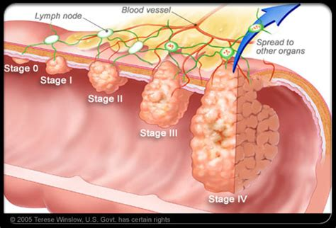 colon cancer 4 stage picture 7