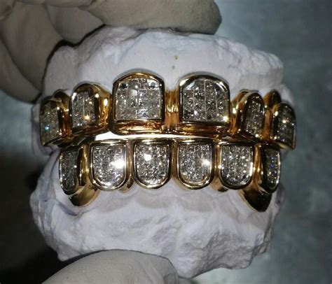 diamond grills for teeth picture 1