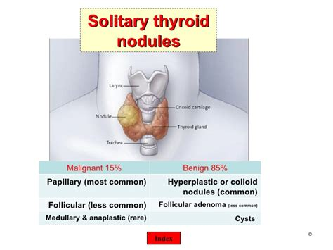 colloid nodule in solitary thyroid nodule picture 1