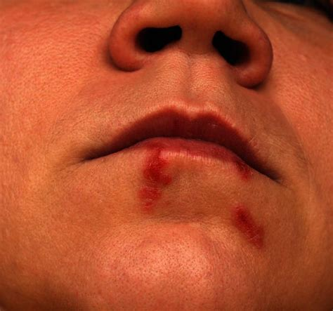 does the sores of herpes heal within a picture 13