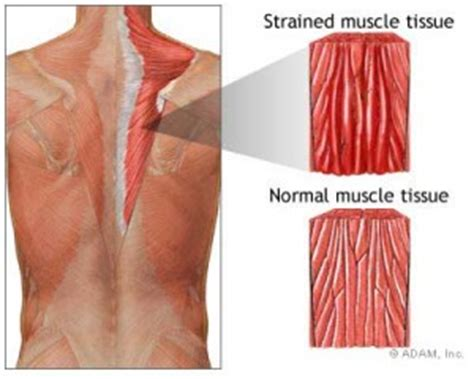 diagnose muscle tears picture 18