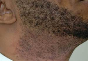 hair removal for men boils picture 7