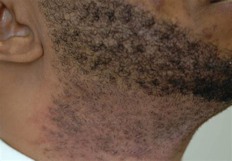 does brazilian hair removal cause yeat infections? picture 10