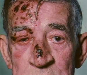 herpes in nose with back pain picture 13