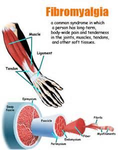 fibromyalgia and thyroid colorado picture 3