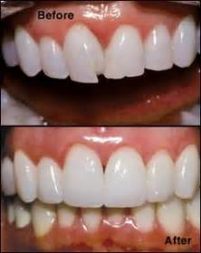 do it yourself dental bonding picture 5