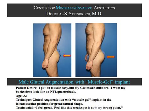 new york, penile fat injections by female dr. picture 7