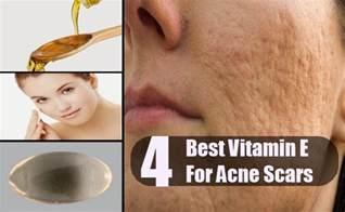 vitamin e and acne picture 1