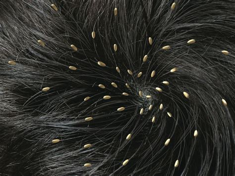 can fleas live in african american hair picture 12