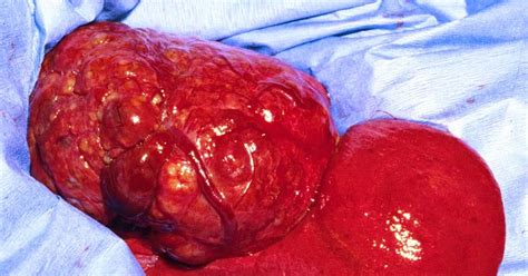 liver cancer in dogs picture 10