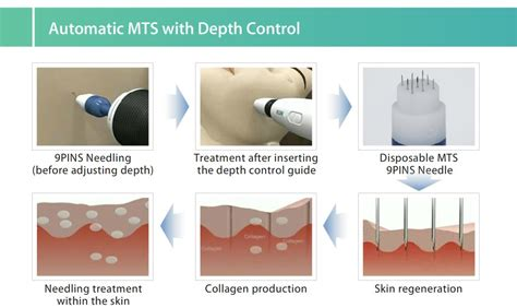 anti-aging hair treatment system picture 5