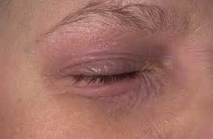 allergy in skin around eyes picture 19