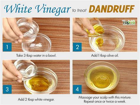 dandruff treatment hair oil. kottakkal picture 9