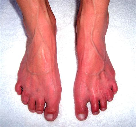 feet burning swelling hands swelling lexapro picture 6
