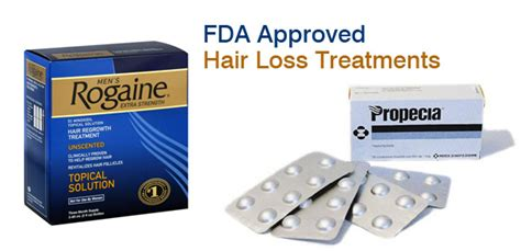 hair loss treatment approved uk picture 2