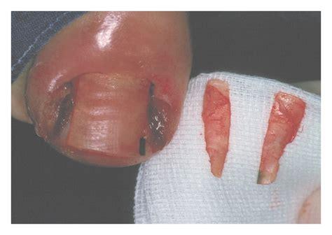 acne antibiotiics picture 19