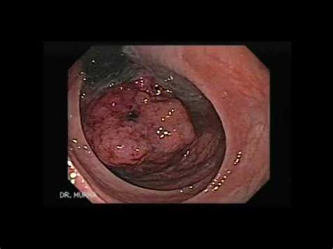 dahilan sintomas ng colon cancer picture 14