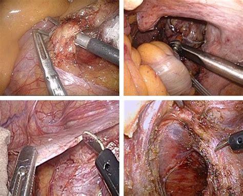 colon surgery proceedure picture 13