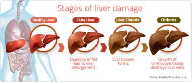 supplement liver transplant patients should avoid picture 4