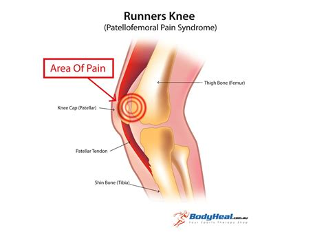 femoral joint pain picture 17