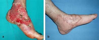 criteria and skin graft and burn picture 7