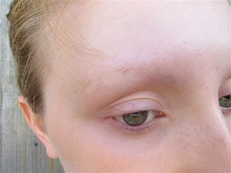 losing hair eyebrows picture 17