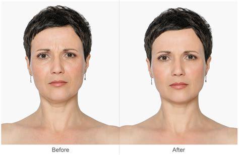 proven cellulite removers picture 6