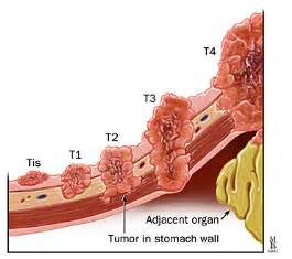 stomach colon cancer picture 18