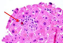 hemangioma and m in liver picture 7