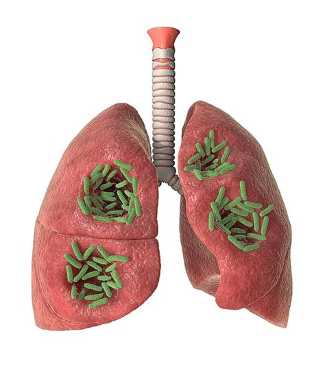 bacterial lung infection picture 1
