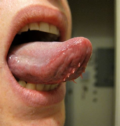 wart underneath tongue picture 1