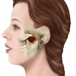 joint and muscle pain in sjogrens syndrome picture 5