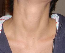 loss of appee lump neck picture 1