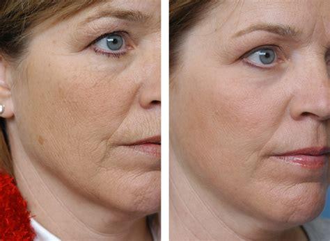 skin resurfacing picture 3
