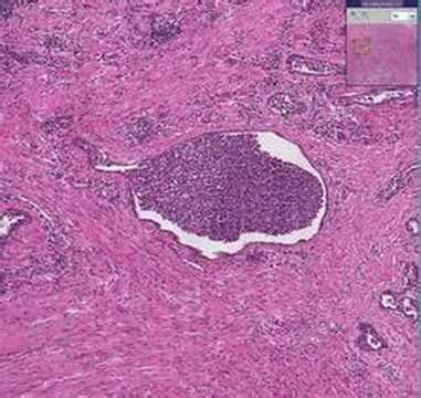 acute prostatitis picture 17