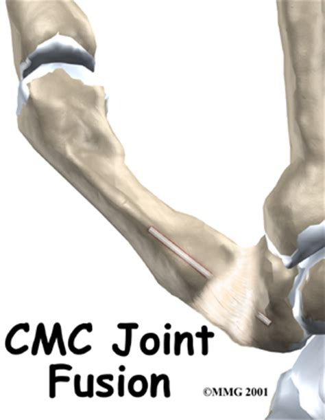cmc joint picture 6