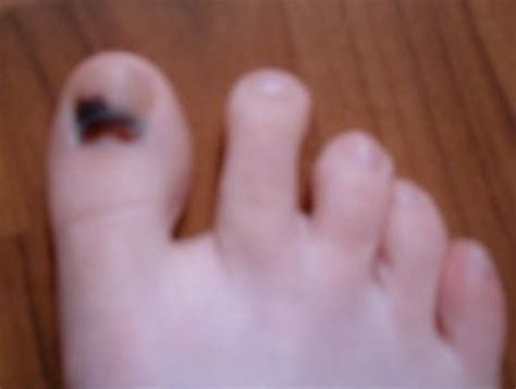 home remedy for toe nail fungus picture 10