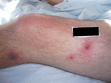sore under skin on leg picture 5