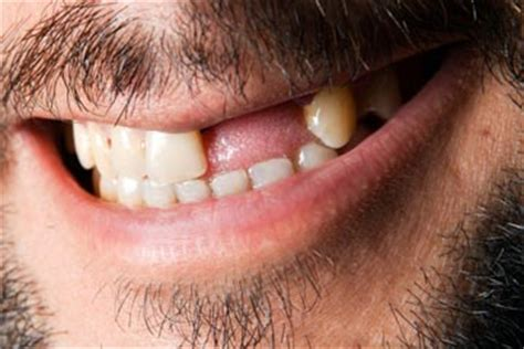 how many h in an human mouth picture 7