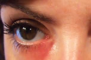 skin allergy around eyes picture 2